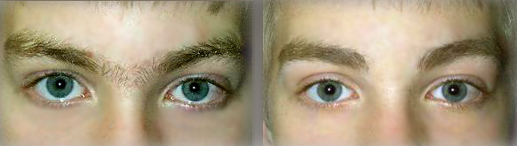antes e depois sobrancelha masculina