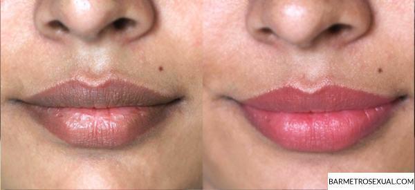 como-clarear-labios