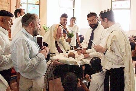 foto de circuncisão