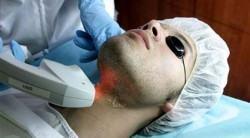 foto de depilação a laser em homem