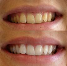 foto dente amarelado