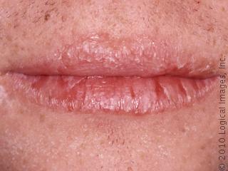 foto lábios ressecados