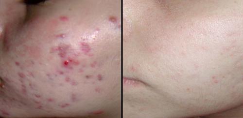 foto cicatriz de acne
