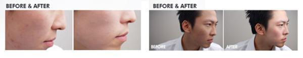 bb cream antes e depois