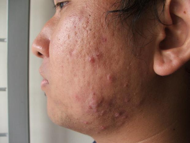 cicatriz de acne caroco