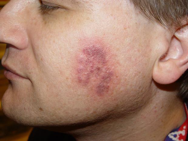 cicatriz de acne manchas