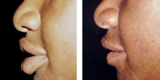 cirurgia plastica para diminuir os labios