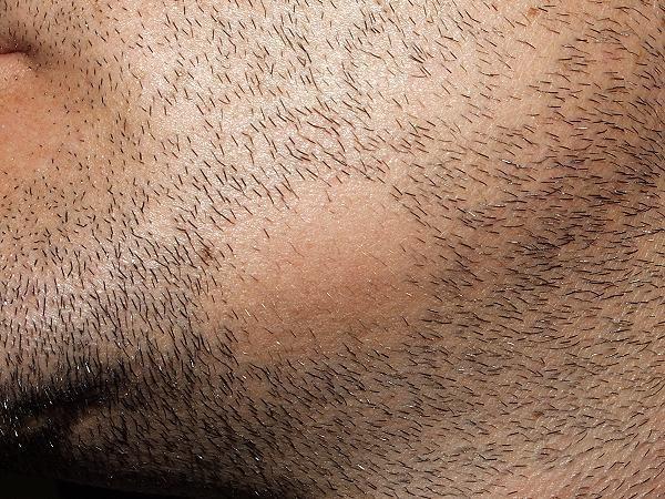 alopecia barba