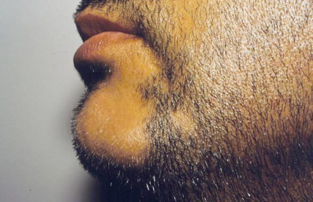 alopecia na barba