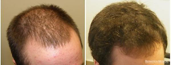 minoxidil calvicie antes e depois