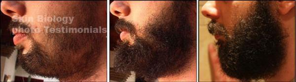 minoxidil crescer barba antes e depois