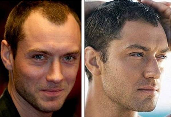 cirurgia de redução testa grande antes e depois
