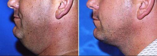 antes e depois papada cirurgia