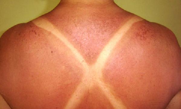 limão na pele antes e depois