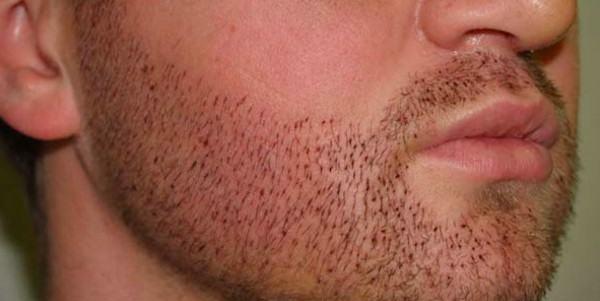 barba implantada