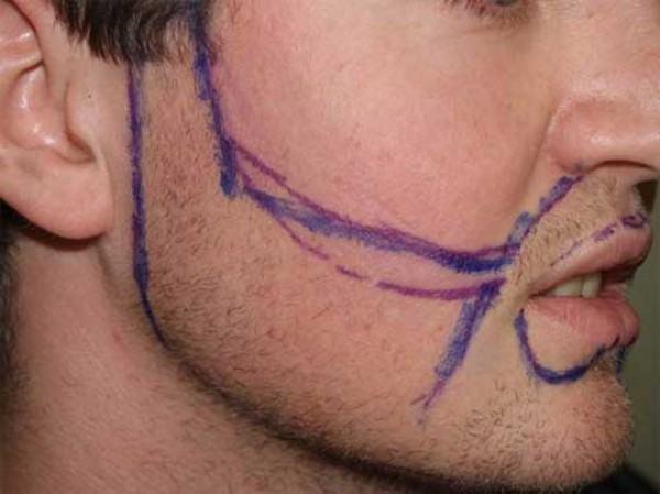 implante de barba