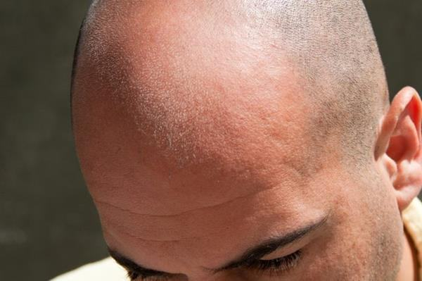 brilho na careca (Copy)