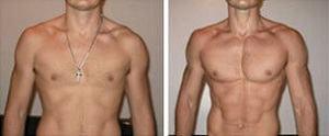 antes e depois metadrol
