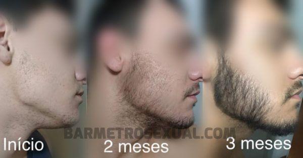 como disfarçar barba falhada