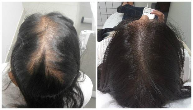 micropigmentação capilar antes e depois