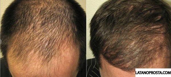 antes-e-depois-latanoprosta-calvicie (1)