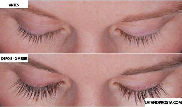 latanoprosta-sobrancelha-e-cilios1