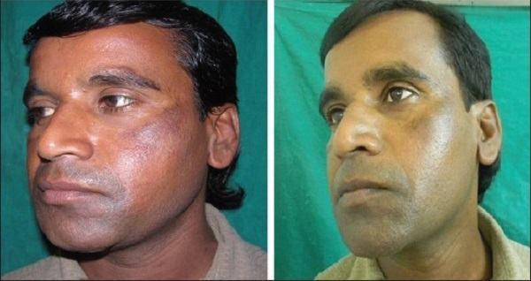 acido tranexamico antes e depois