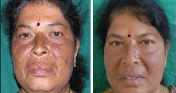resultado acido tranexamico antes e depois