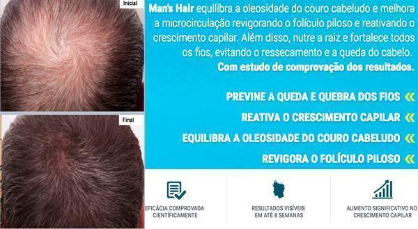 mans-hair-capillum-funciona-o-que-e (1)