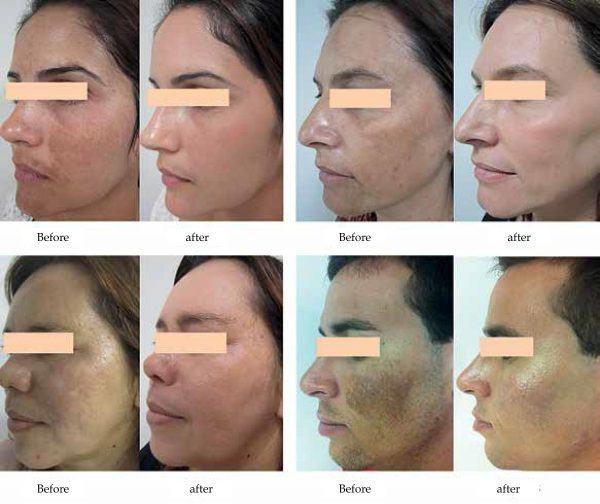 acido tranexamico antes e depois resultado