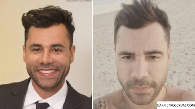 bichectomia-diminuir-bochecha-homem-cirurgia-masculina