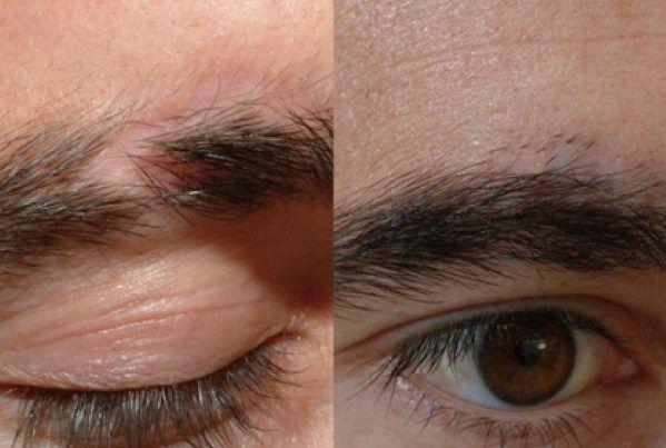 minoxidil na sobrancelha falhada masculina