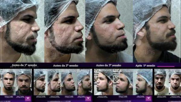 microagulhamento antes e depois cicatriz acne