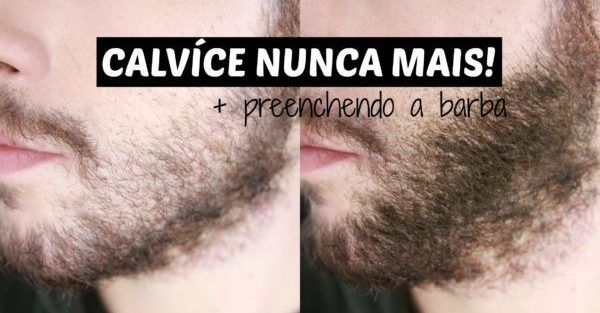 como esconder barba falhada